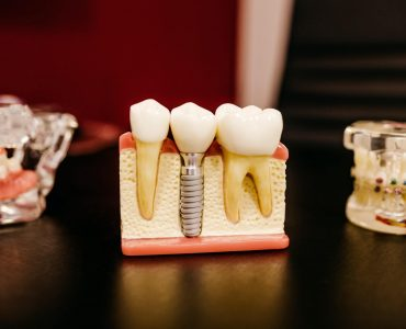7 Top Benefits of Dental Email Marketing Campaigns